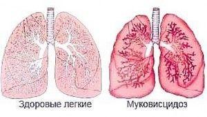 Fibroza chistică ușoară