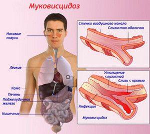 Blocarea în fibroza chistică