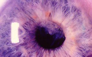Afakiya lentilă