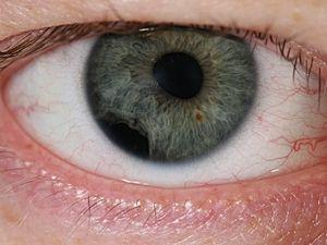 Etapele de dezvoltare a angiopatiei retiniene