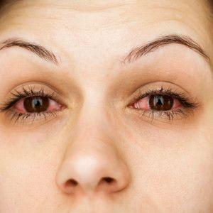 Simptomele angiopatiei retiniene