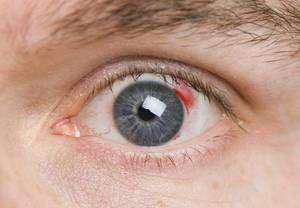 Descrierea angiopatiei diabetice a retinei