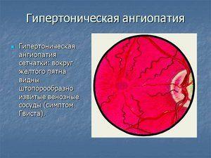 Etapele angiopatiei hipertensive a retinei