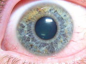 Descrierea angiopatiei retiniene hipotonice