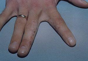 Cum este boala dishidrozei mâinilor