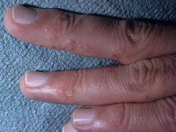 Tratamentul dishidrozei manuale