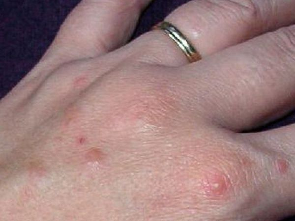 Probleme de piele și tratamentul acestora