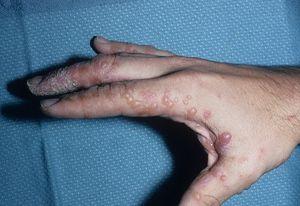 Tratamentul dishidrozei mâinilor