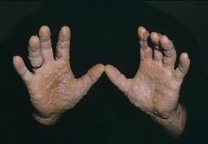 Cum să tratați dishidroza mâinilor