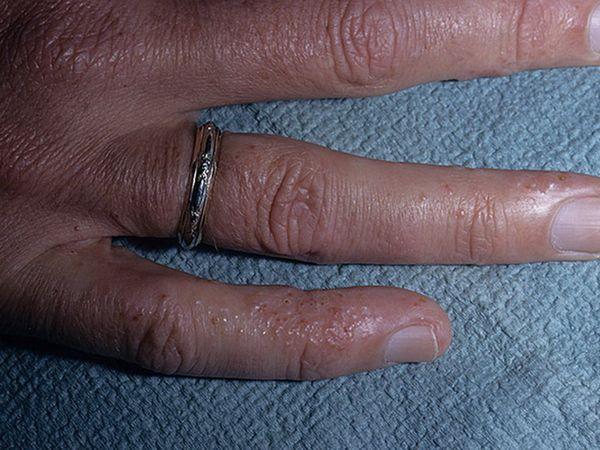 Diagnosticul dishidrozei mâinilor