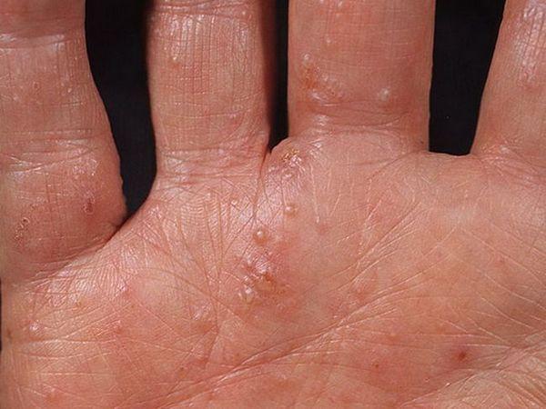 Metode de tratare a dishidrozei mâinilor