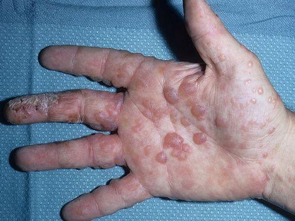 Cauzele apariției bolii dishidrozei mâinilor