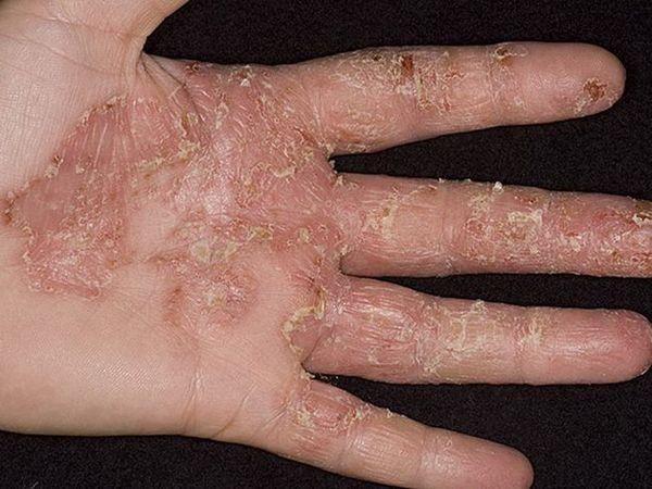 Eczemă pe mâini