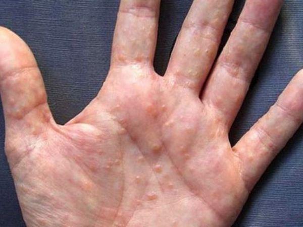 Eczema dishidrotică pe mâini