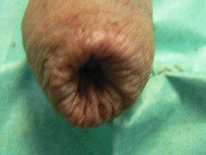Phimosis - ce este această boală