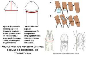 Tratamentul chirurgical al fimozei este o operație simplă