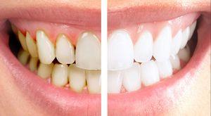 Curățarea dinților în cabinetul stomatologic