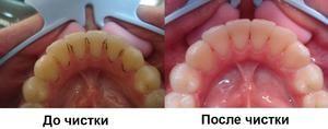 Cum se efectuează curățarea profesională a dinților?