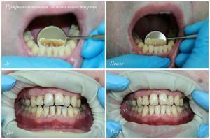 Curățarea stomatologică a dinților