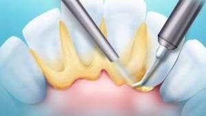 Efectuarea unei periere a dintelui