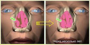Ce este rinita hiperplazică