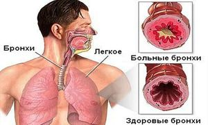Astmul provoacă tulburări respiratorii