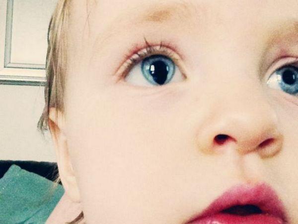 Principalele afecțiuni ale irisului ochiului