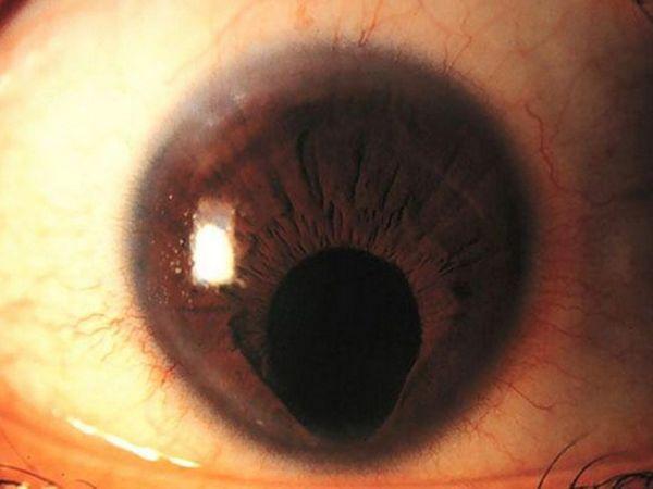 Colobomul ravmatic al irisului