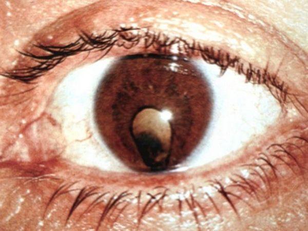 Ce trebuie să faceți cu patologia ochiului