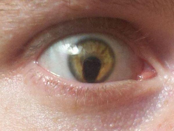 Cum se trateaza colobomul ochilor copiilor