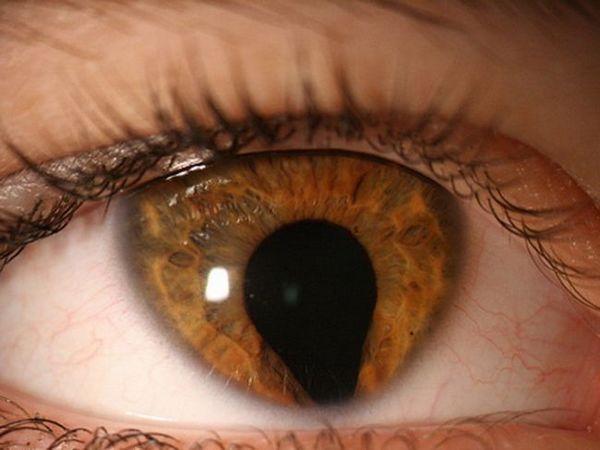 Ce este coloboma irisului