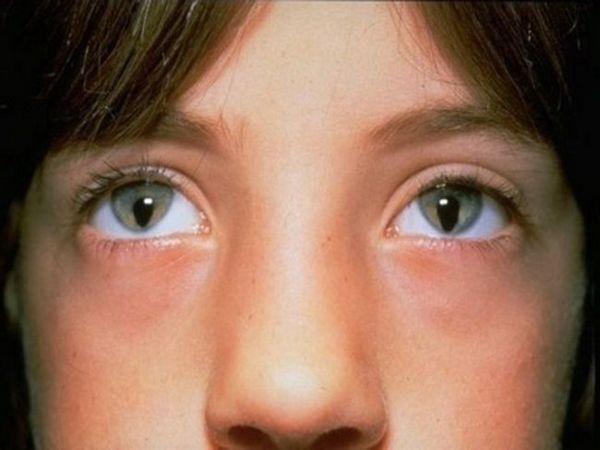 Boala Iris Coloboma și consecințele acesteia