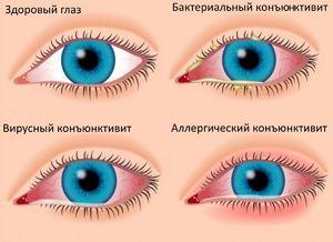 Identificați simptomele