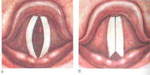Cum se dezvoltă laringita acută?
