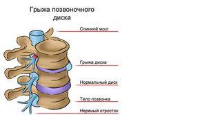 Hernia din regiunea toracică - motivele apariției