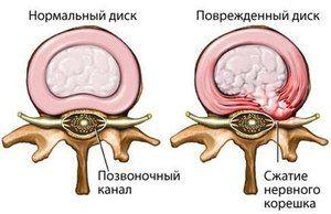 Hernia hernie - o diagramă vizuală