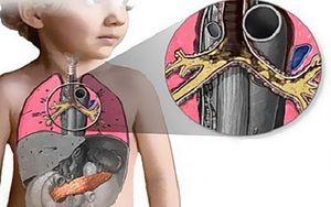 Plămâni ai plămânilor
