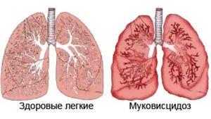 Simptomele fibrozei chistice
