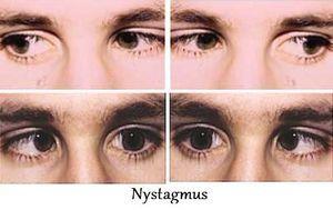 Cum să identificați nistagmusul