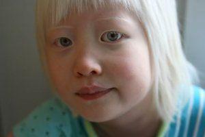 Albinismul și nistagmusul
