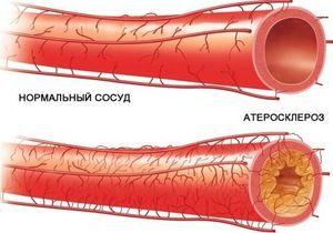 Ce este ocluzia vasculară