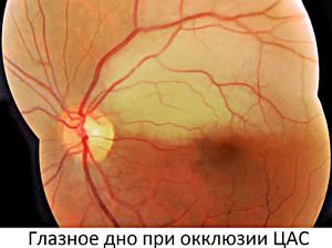 Tratamentul ocluziei vasculare