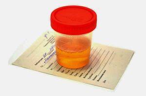 Principalele semne clinice ale prostatocistitei sunt diagnosticul