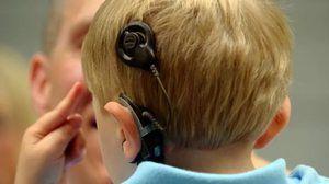 Implantul cohlear cu pierderea auzului senzorineural