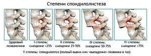 Spondilolisthesis - caracteristici și varietăți ale bolii