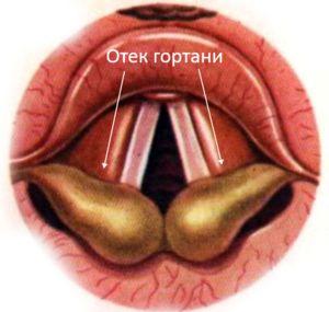 Cauzele bolii