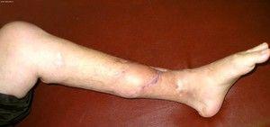 Streptococul este agentul cauzator al osteomielitei