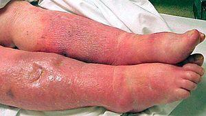 Streptococul este agentul cauzal al sepsisului