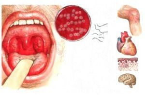 Streptococul este un agent cauzal al anginei