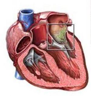 Streptococul este agentul cauzator al endocarditei
